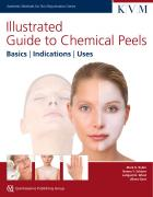 Illustrated Guide to Chemical Peels